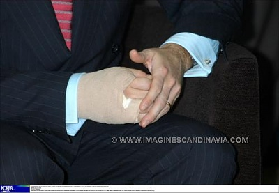 Click image for larger version  Name:hand.jpg Views:209 Size:18.8 KB ID:98235